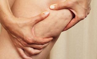 ATELIER : Cellulite – Connaître et lutter – 13 juin – MERIGNAC